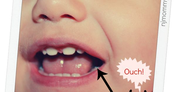 Toddler Teething Signs And Symptoms Of The First Molars