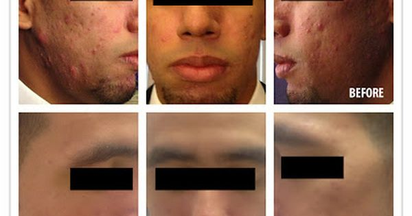 Here S Before After Pics Of A Client That Quickly Cleared A Severe Acne Issue By Using Vivant Skin Chemical Peel Skin Specialist Natural Skin Tightening