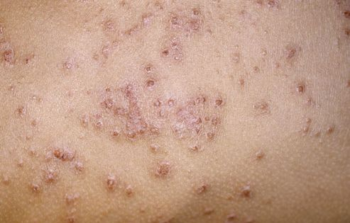 Slideshow a visual guide to eczema eczema treatment for Fish oil rash