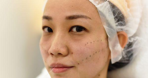 شد الوجه بالخيوط قبل وبعد مميزات نصائح و اضرار شد الوجه بالخيط بشرة وشعر Thread Lift Face Baby Face Facelift