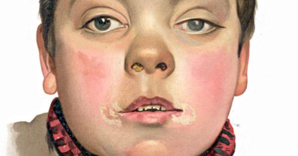 Granulomatosis with polyangiitis - Wikipedia, the free ...  Congenital Syphilis Saddle Nose