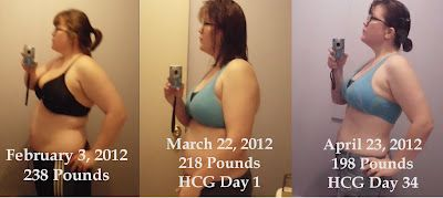 How much weight can i lose with hcg shots