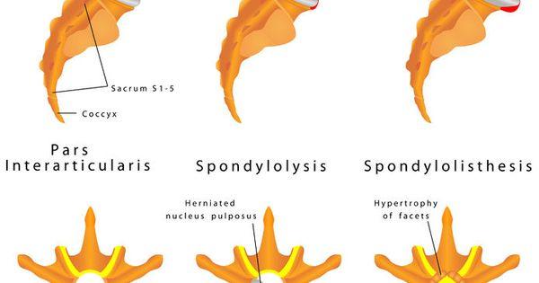 Spinal Surgery: Laminectomy and Fusion