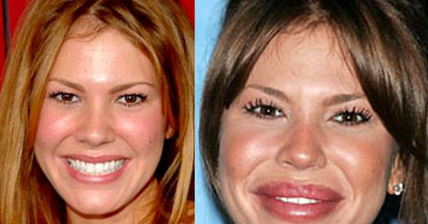nikki cox lip augmentation and brow lift before and after she looks like a puppet or a baboon. Black Bedroom Furniture Sets. Home Design Ideas