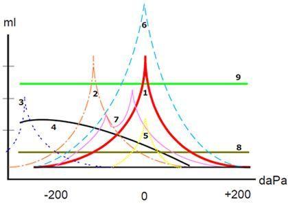 Representación De La Timpanometría Y Su Significado Implicaciones En La Audición Hipoacusia Otorrino Lengua De Signos