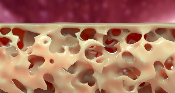 30++ Osteoporosis drugs and hair loss info