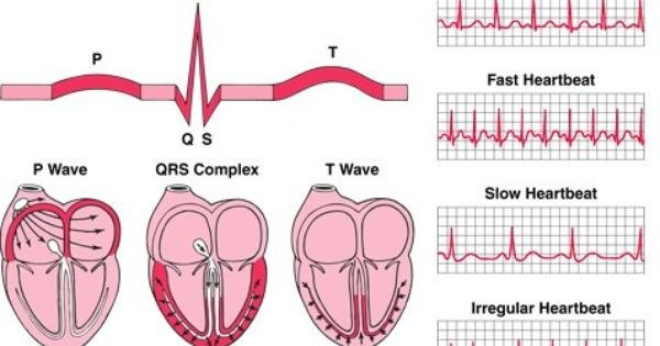 Different Heart Rhythms With Images Cardiology Nursing Study