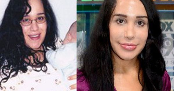Nadya Suleman Plastic Surgery Before And After Celebrity Plastic
