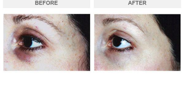 Image result for Epionce Renewal Eye Cream