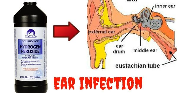 How To Get Rid Of An Ear Infection With Hydrogen Peroxide Clickbank Re Ear Infection Ear Infection Remedy Ear