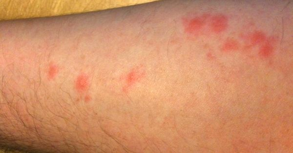 how to get rid of welts on skin
