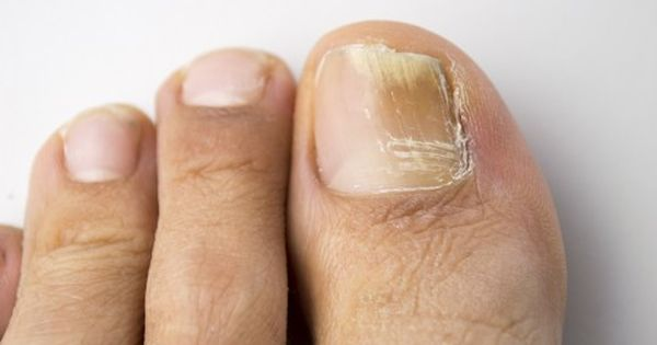 how to get rid of a toe infection fast
