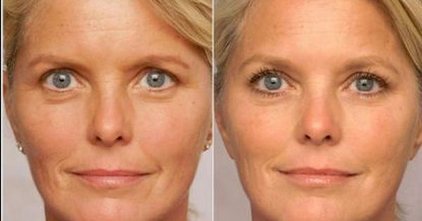 Retinol cream reduces fine lines before and after on