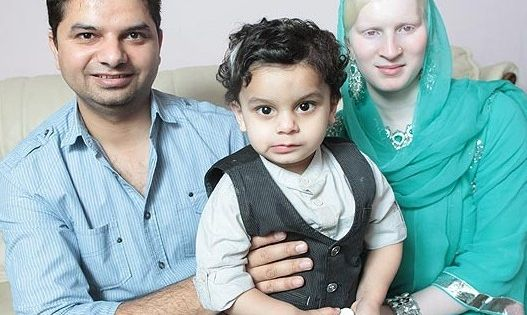 Family With Albino Mother Albinism Albino Human
