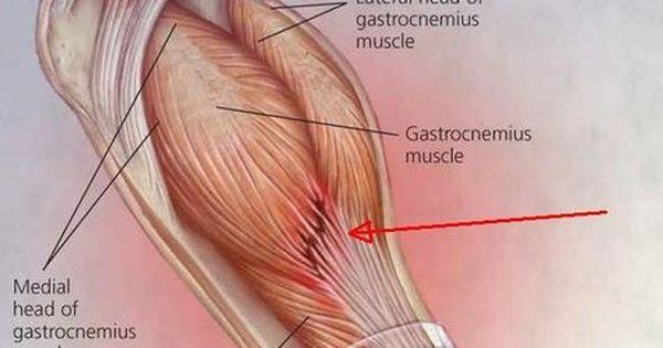 durere a articulațiilor sacroiliace