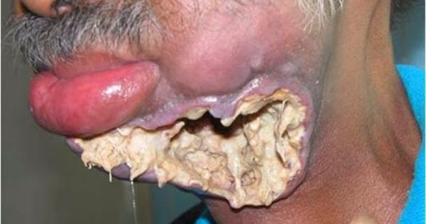 Maggot-infested oral cancer wound (Warning: GRAPHIC PHOTOS ...