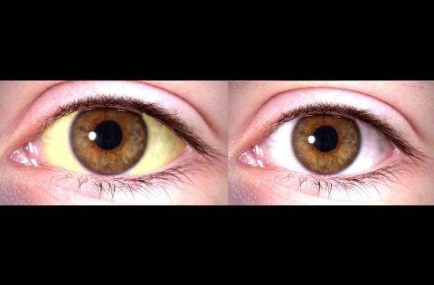 Como blanquear los ojos con remedios caseros tener los for Como desmanchar el marmol blanco