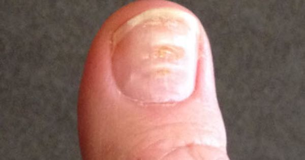 Pictures Of Fingernail Ridges Toenail Fungus Cure Nail Conditions Nail Disorders