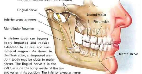 Impacted Wisdom Teeth Impacted Wisdom Teeth Cause Sign