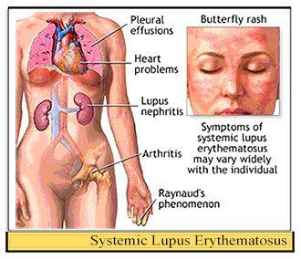 Systemic Lupus Erythematosus Sle Medical Surgical Nursing