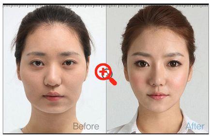 d497de38f121a7ddb2d66fc38946bb53 - How Much Is It To Get Plastic Surgery In Korea