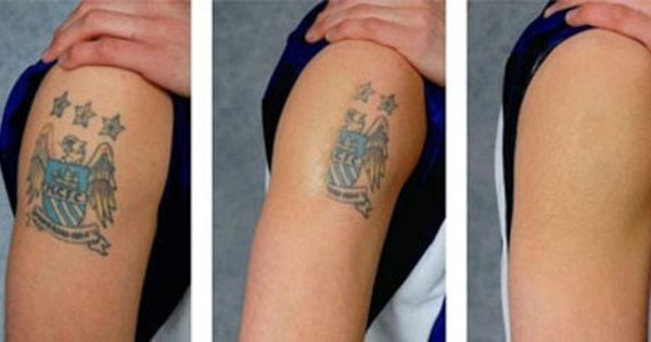 Before and After of Tattoo Wrecking Balm Tattoo Removal Cream | Styles | Pinterest