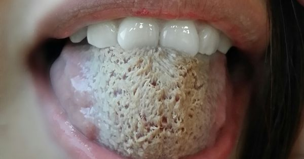 Thrush Is An Infection Of The Mouth Caused By The Candida
