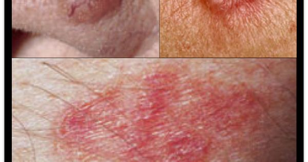 Basal cell carcinoma examples | Skin Cancer | Pinterest
