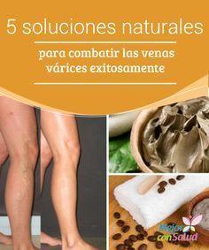 productos naturales para eliminar varices