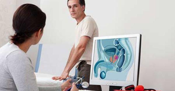 prosztata műtét utáni katéter Uroprofit Prostate Véleményekkel