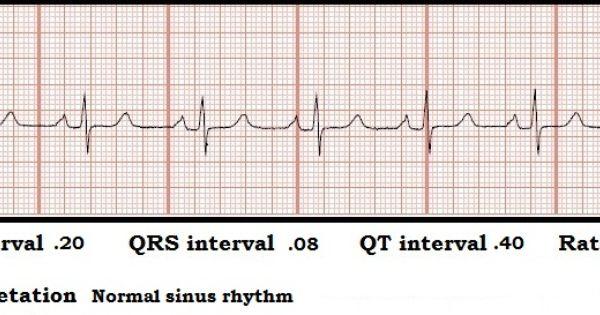Normal Sinus Rhythm Strip Float Nurse Ecg Rhythm Strip