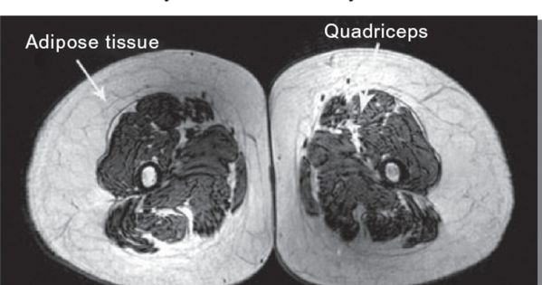 What REALLY happens to our muscles as we age? These are MRI