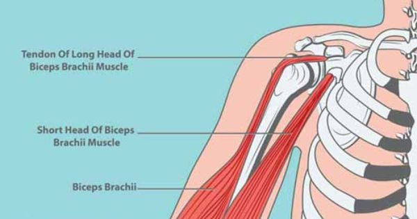treating long head of biceps lhb pathology A patient's guide to the biceps tendon biceps tendon key points the long head of the biceps (lhb) pathology, and treatment of the biceps tendon exists.