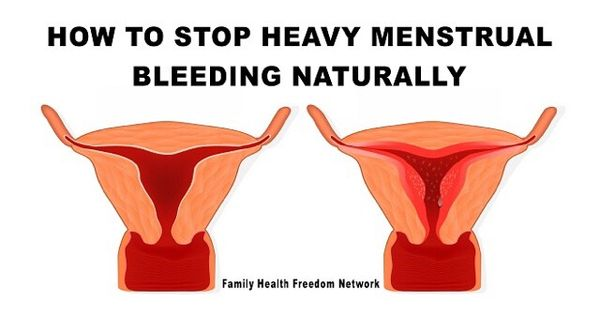 10 Best Natural Remedies For Menorrhagia (Heavy Menstrual Bleeding)