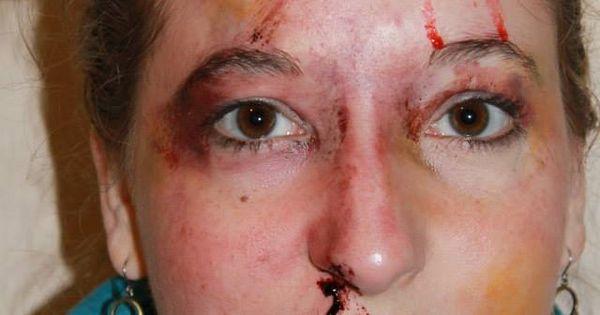 Fake Bruising And A Nosebleed Www Tamarielpaints Com