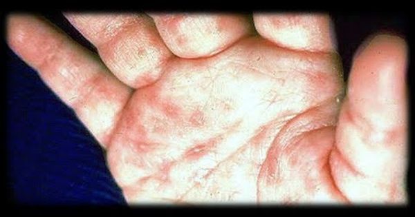 Bed Bugs And Scabies At The Same Time