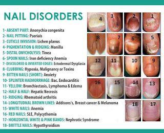 Fingernail Ridges Thyroid Awesome Nail Nail Disorders Nail