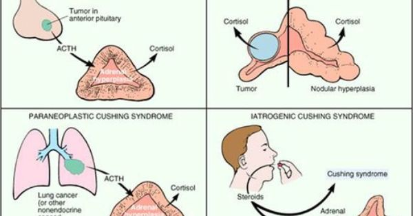 Cushing Syndrome Week 4 Pituitary And Adrenal Pathology