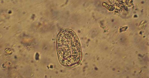 Strongyloides Ransomi egg. Swine | Parasites | Pinterest