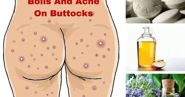 Home, Skin care... How To Treat Boils On Buttocks At Home