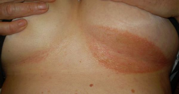 It Can Be A Real Burden To Deal With A Rash Under Your
