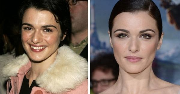 Rachel Weisz Plastic Surgery Before And After The Procedure And