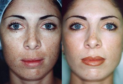 Laser8b Jpg 400 215 275 Chemical Peels Before And After