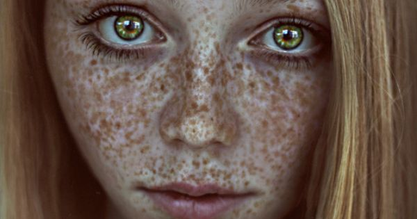 Freckled Frog Golden Princess Emerald Gold Eyes By