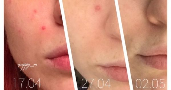 Cosrx One Step Pimple Clear Pads Review 6 Reasons Why I Love These Korean Pads And Why I Call Them My Must Have You Ll Love Them Too Pimples Cosrx First Step