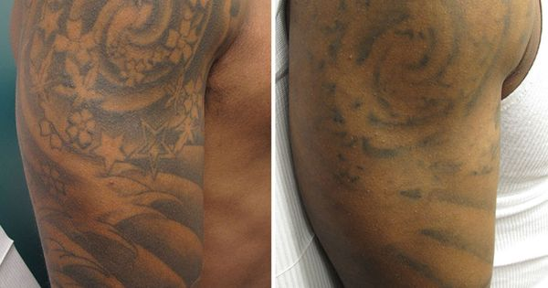 After 3 laser tattoo removal treatments there is for Tattoo turned black after laser