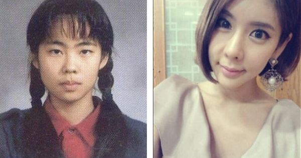31 Crazy Before And After Photos Of Korean Plastic Surgery Korean Plastic Surgery Celebrity Plastic Surgery Plastic Surgery