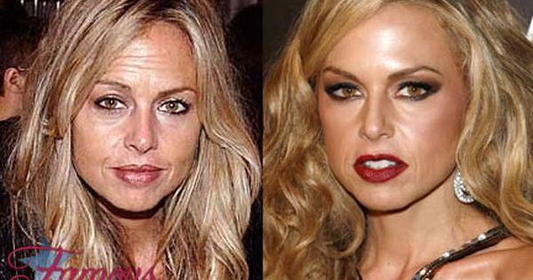 Wrinkles Around Anus Disasters Celebrity -- skinmix ...
