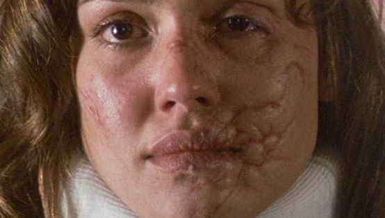 various facial scars from recent movies   facial scarring ...