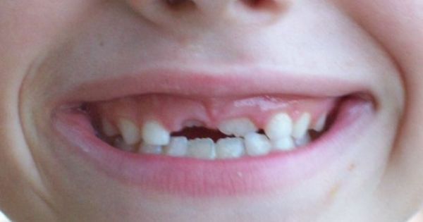 Top 10 Weird Tooth Facts For Kids Your Dentist Doesn T Know Dentist Kids Teeth Childrens Dental Health Month